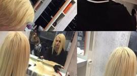 Saç Kaynak Öncesi - Sonrası Resimleri - 1